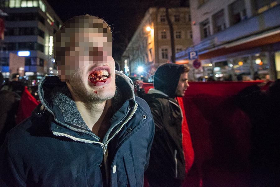 Von Polizeibeamten verletzter Gegendemonstrant | © Christian Martischius
